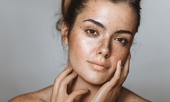 Visage d'une femme à la peau déshydratée